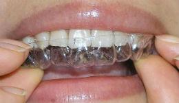 Շուտով Հայաստանում ևս ատամներն ուղղելու համար բրեկետներին կփոխարինեն թափանցիկ քափերը