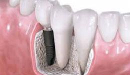 Նոր հայտնագործություն. այժմ ատամները կարելի է աճեցնել ցանկացած տարիքում՝խուսափելով իմպլանտներից ու  պրոթեզներից